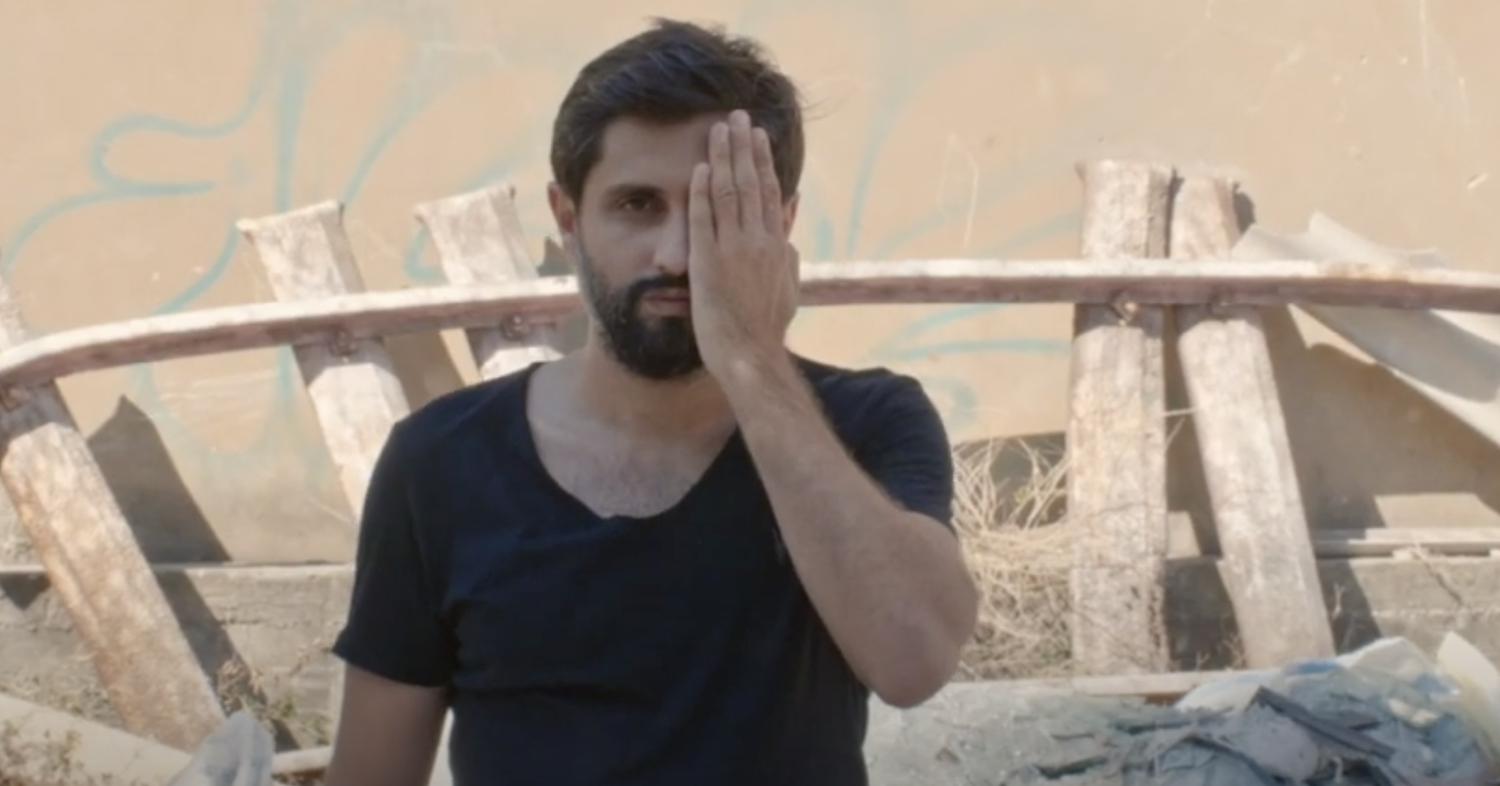 A picture of a bearded man with his hand held over his left eye